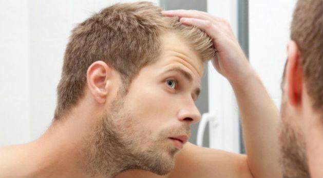 Homem preocupado com calvície